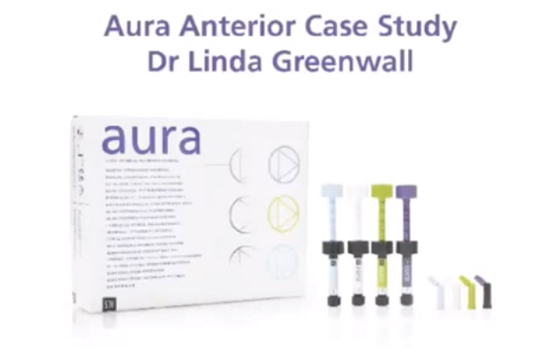 How-To: Anterior Dental Restoration with Aura from SDI